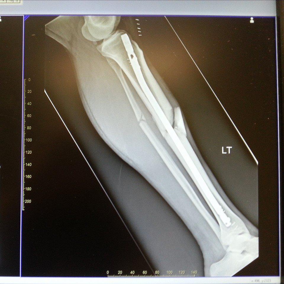 My L Leg w Titanium Intramedullary Rod